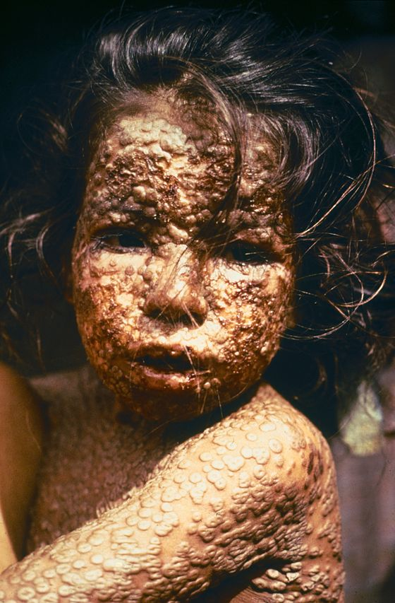 Photo of a girl with smallpox